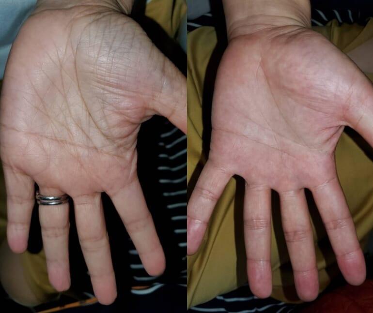 twins_hands